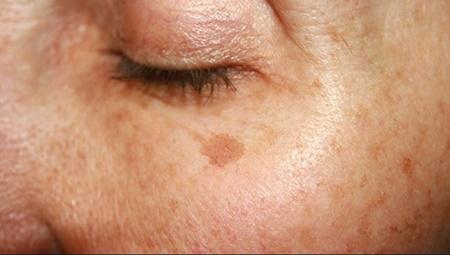 نکته بهداشتی: درمان های خانگی برای لکه های پیری