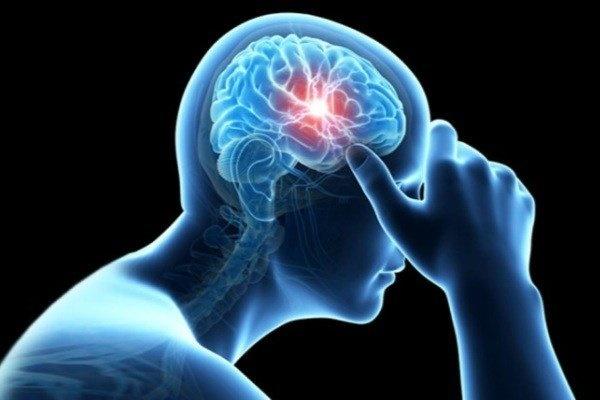 ارتباط آلودگی هوا و سکته مغزی | سردردها را جدی بگیرید