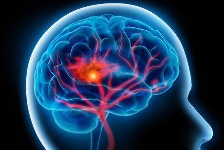 آشنایی با عوامل خطرساز برای ابتلا به سکته مغزی در زنان