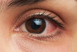 چشم ها