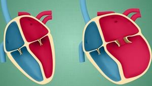 نکته بهداشتی: زندگی با کاردیومیوپاتی