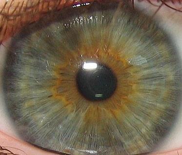 چطور اسکن چشم کار میکند؟