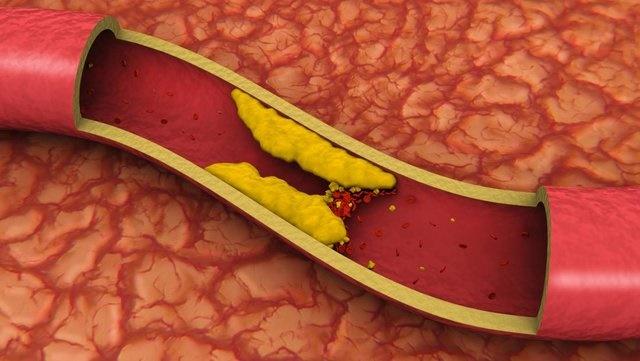 امید به درمان تصلب شرائین فقط با یک تزریق