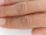 نکته بهداشتی: پیشگیری از خشکی پوست