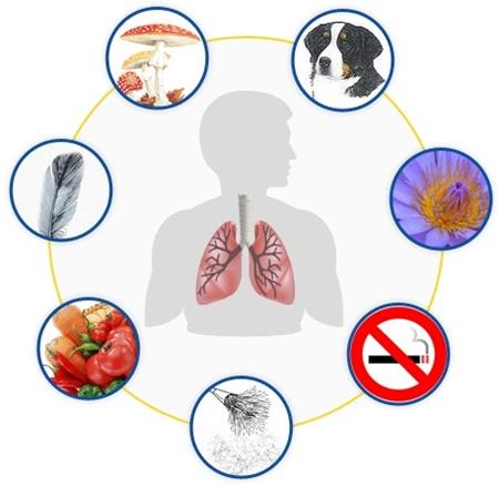 آنفلوآنزا,مجله نکته بهداشتی روز,سلامت