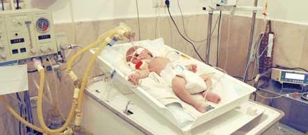 نوزادانی که خمار به دنیا میآیند