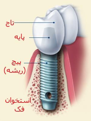 implant ۲