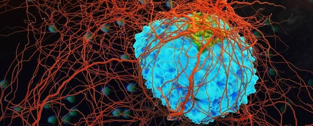 کشف داروی جلوگیری از حرکت سلولهای سرطانی