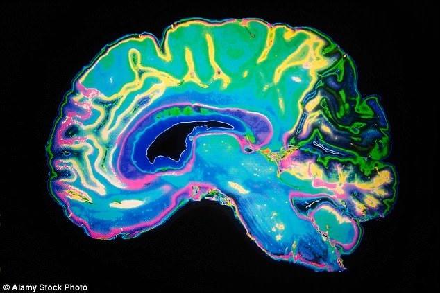 اندازهگیری بهره هوشی افراد با اسکن مغزی