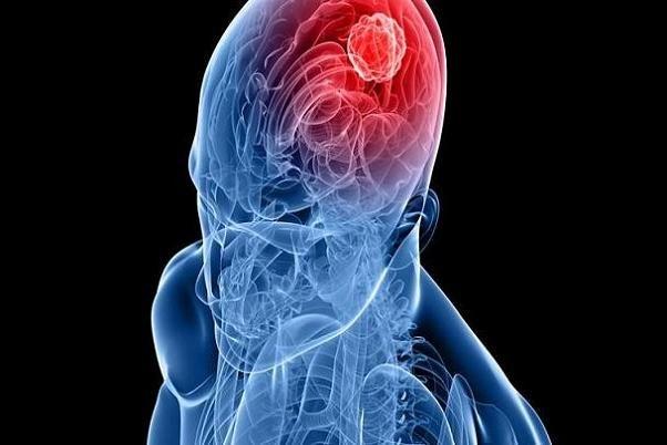 آلودگی هوا عامل احتمالی ابتلا به تومور مغزی