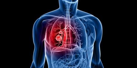 پزشکی,سرطان ریه,بیماری