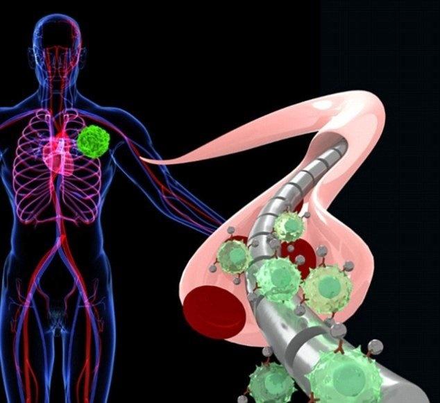 تشخیص سرطان با سیم مغناطیسی
