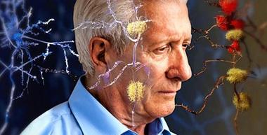 شاید چارهای باشد برای آلزایمر