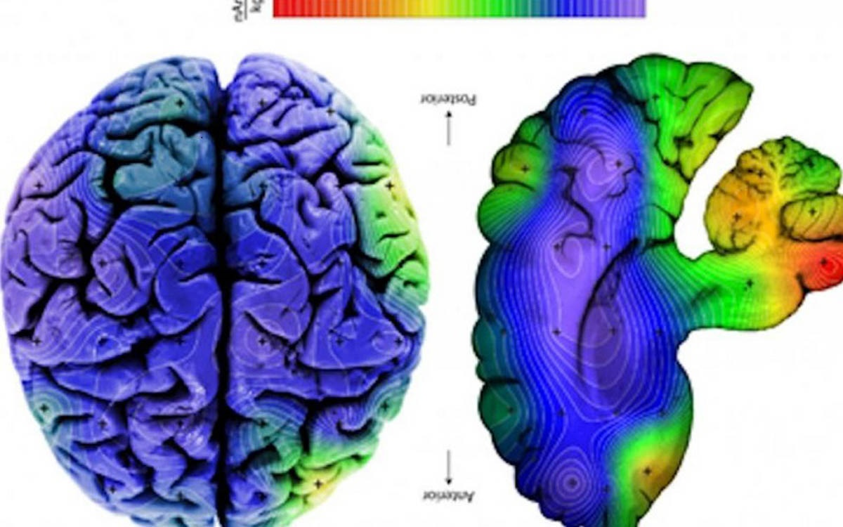 نقشه ذرات مغناطیسی مغز انسان