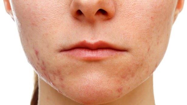 در راه | واکسن بیماریهای پوستی