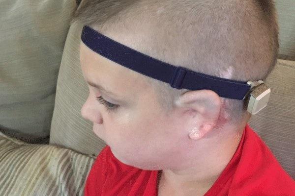 تاثیر «لوله گوش» در پیشگیری از عفونت گوش