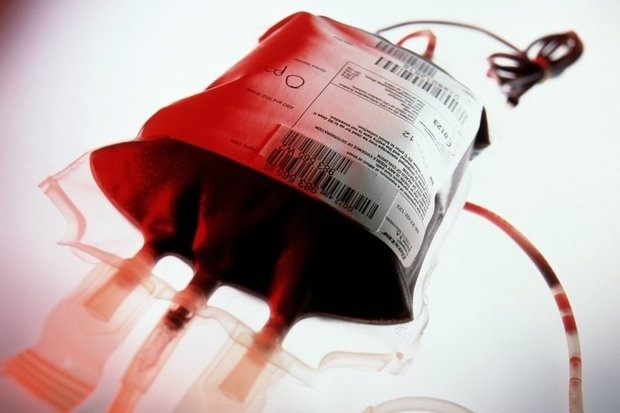 ارتباط تزریق خون جوان با پیشگیری از بیماریهای افزایش سن