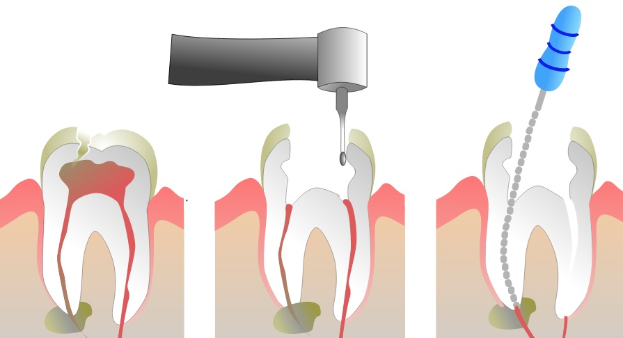 root canal ۲