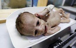 نوزاد یمنی
