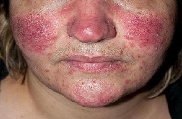 بیماری پوستی عامل افزایش ریسک آلزایمر تا ۲۵ درصد