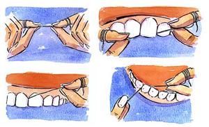 چگونگی نخ کشیدن دندان
