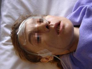 ایزابل دینور پس از عمل پوند بخشی از صورت