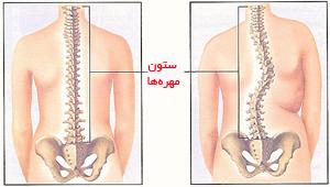 ستون فقرات طبیعی و ستون فقرات دچار اسکولیوز