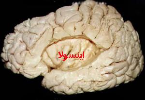 اینسولا ساختاری در عمق مغز که د راعتیاد دخیل است