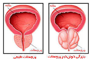http://images.hamshahrionline.ir/images/upload/news/pose/8511/prostate-enlargement-am1.jpg