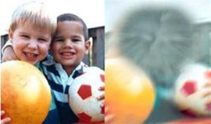 یک تصویر از دید یک چشم طبیعی -سمت چپ- و همان تصویر از دید یک بیمار ایامدی مبتلا به