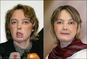 چهره دینور در فوریه(چپ) و نوامبر 2006
