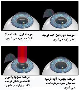 عینک+لیزر
