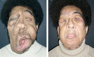 بیمار مبتلا به نوروفیبروماتوز صورت قبل و بعد از پیوند