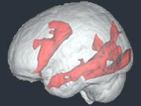 اسکن مغز یک کاربر اینترنت در حال مطالعه