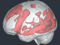 مغز کاربران اینترنت در حال جستجو؛ نقاط بیشتری فعال است